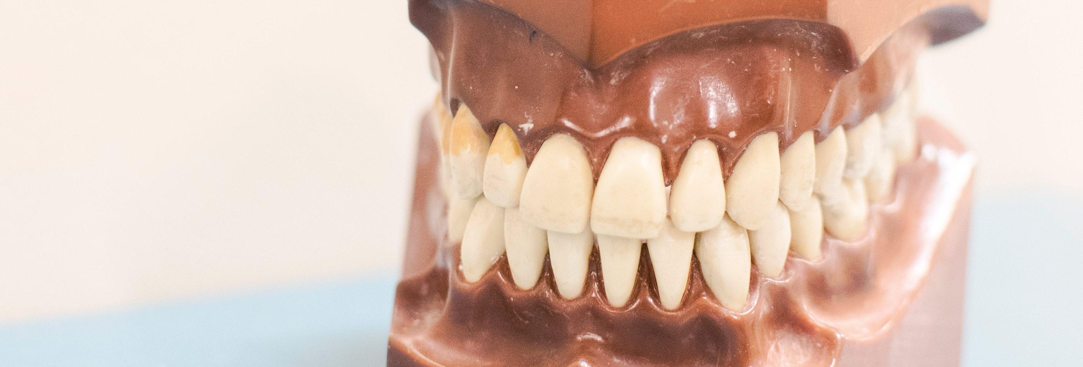 Tandvleesbehandeling